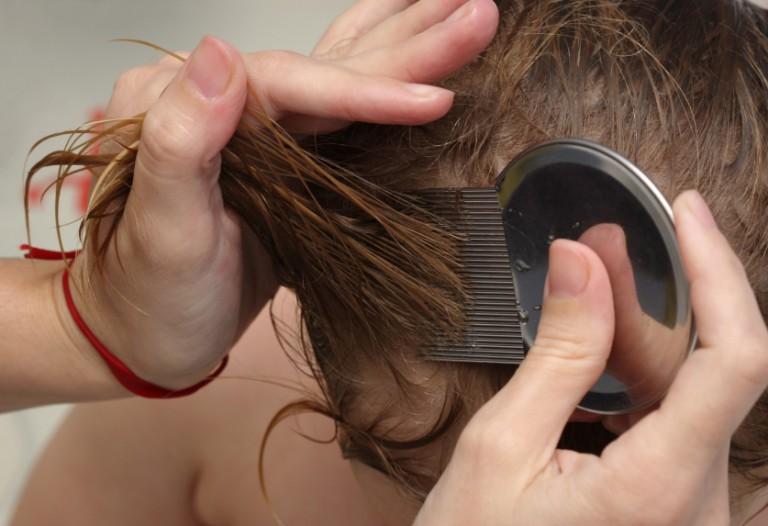 Избавление от вшей и гнид в домашних условиях