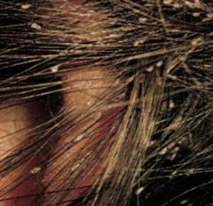 вши и гниды на темных волосах