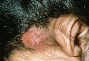 укусы возле уха от вшей