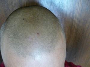 бритье налысо