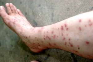 последствия от укусов блохи