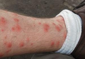 укусы от клопов на ноге