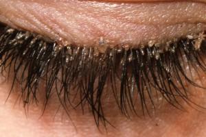 скопление вшей и гнид на ресницах