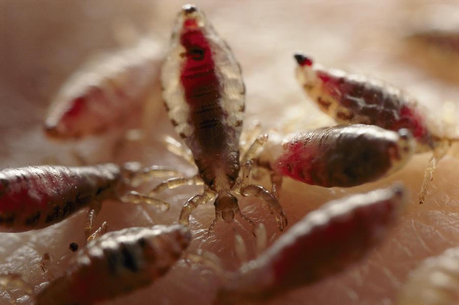 паразиты в голове человека видео