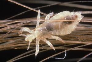 паразит головная вошь