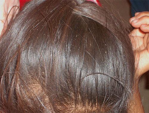 паразиты в волосах человека как