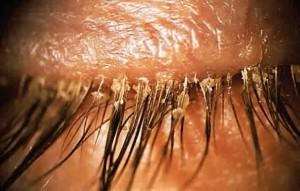 глазной клещ у человека