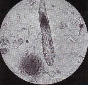 кожный клещ демодекс под микроскопом