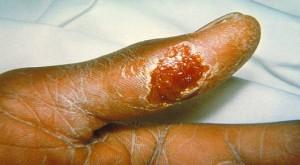 тулерямия у человека