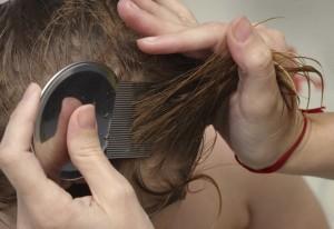 вычесывание вшей после применения черемичной воды