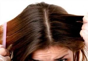 вши в волосах у девушки
